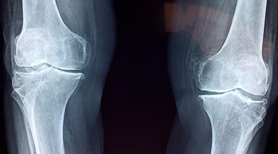 Punto limpio radiografía
